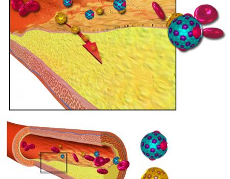 Dislipemias: casi la mitad de los trabajadores analizados tenían valores alterados de colesterol total