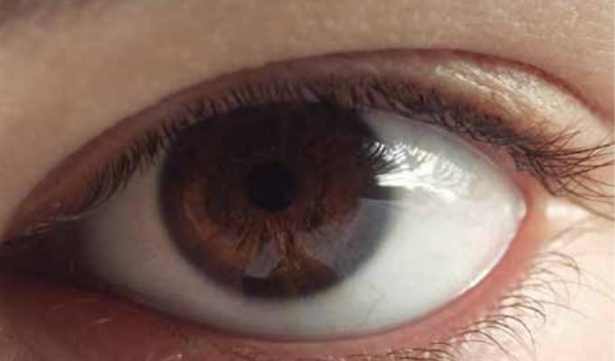 Prevenir la ceguera en millones de personas gracias a la tecnología móvil