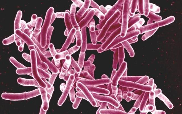 La lucha contra la tuberculosis del siglo XXI