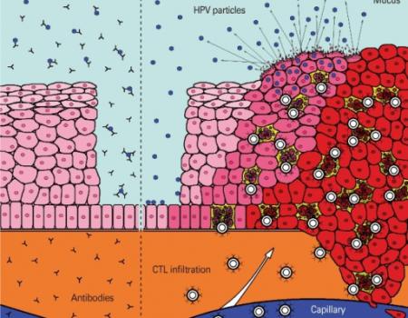 Vacuna contra el cáncer. Virus del Papiloma Humano (VPH)