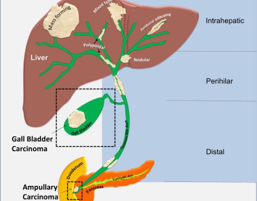 Antidiabéticos incretinas y riesgo de colangiocarcinoma