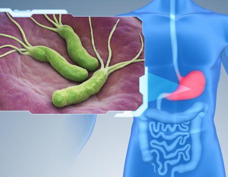 Erradicación del Cáncer Gástrico tratando al Helicobacter Pylori