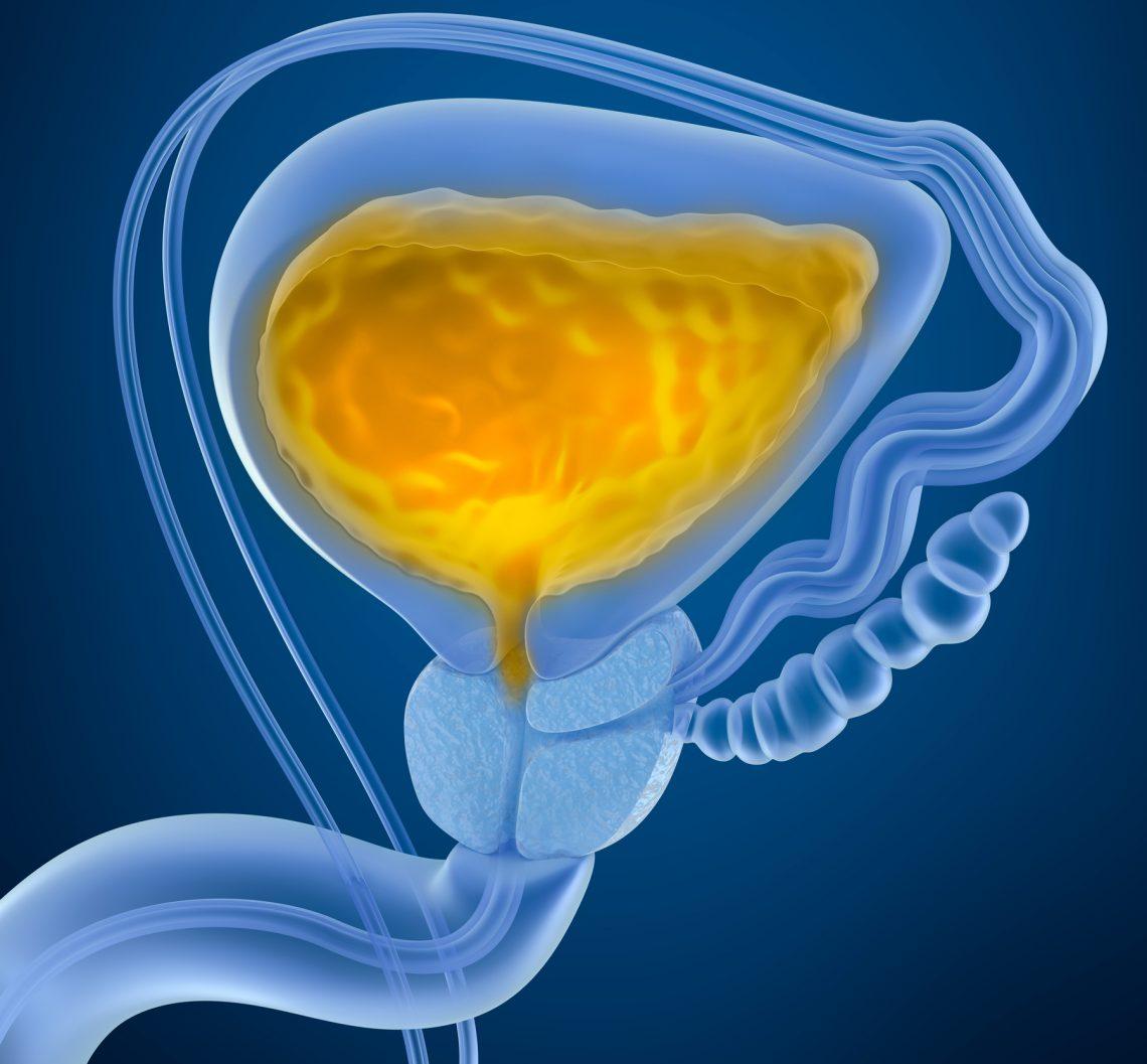 Cáncer de vejiga en pacientes con hematuria microscópica asintomática