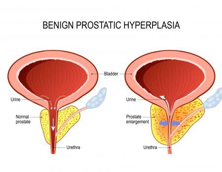 Medicamentos para la próstata que incrementan el riesgo de diabetes tipo 2