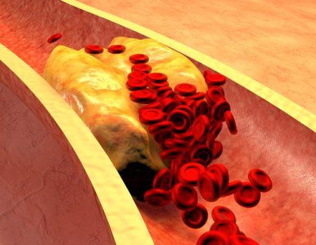 Riesgo de ateroesclerosis por carnitina  y la carne roja