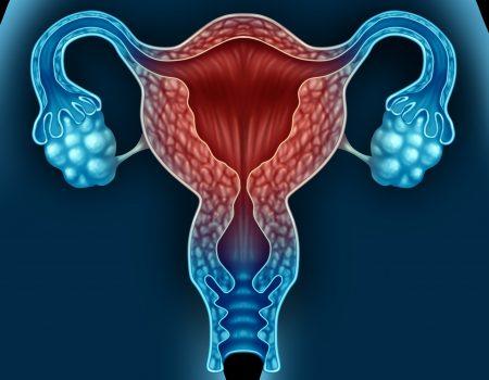 Utilidad de la ecografía en la detección del cáncer de ovario