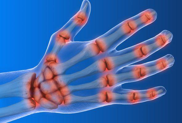 Nuevos fármacos en el tratamiento de la Artritis Reumatoidea