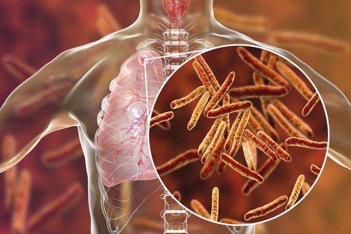 Tuberculosis, situación actual preocupante