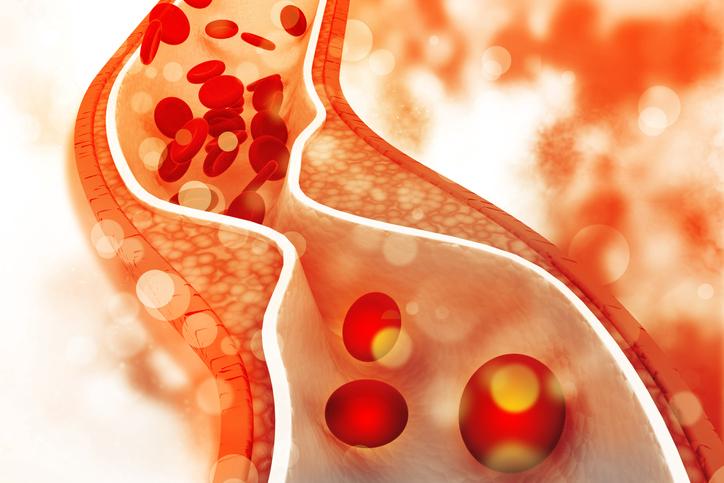 Nuevo medicamento para reducir el colesterol LDL