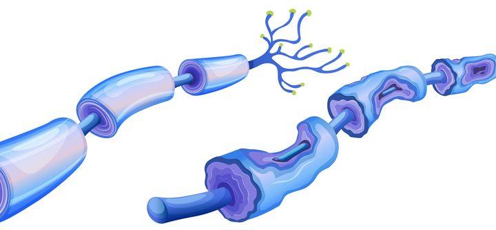 Polineuropatía de fibra pequeña, frecuente y poco conocida