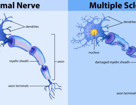 Terapias modificadoras de la enfermedad en la Esclerosis Múltiple
