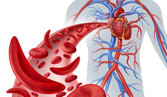 Nuevos medicamentos para la Enfermedad de células falciformes