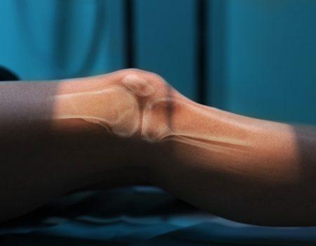 Terapias biológicas para la artrosis de rodilla