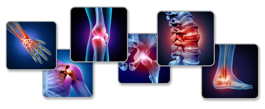 Terapias biológicas en Enfermedades Inflamatorias Inmunomediadas