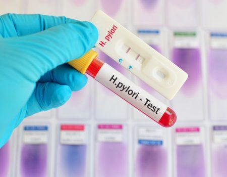 Nueva combinación de fármacos para tratar al Helicobacter Pylori