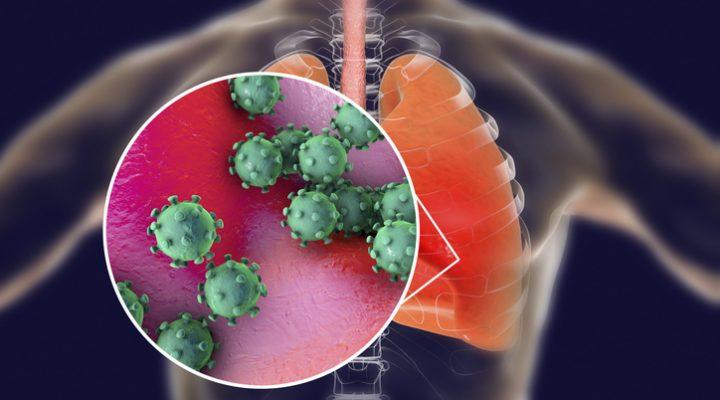 Nuevo coronavirus causando neumonía